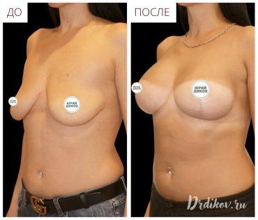 Устранение птоза груди (вид слева))