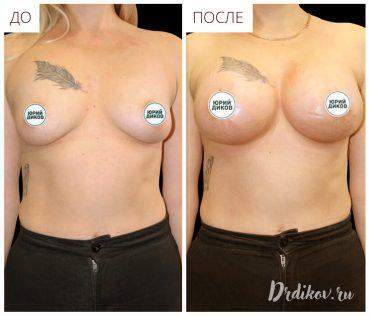 Результат операции по увеличению груди