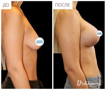 Подтяжка и увеличение груди (вид справа))