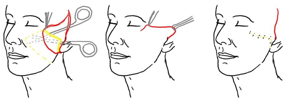 Как проходит подтяжка лица