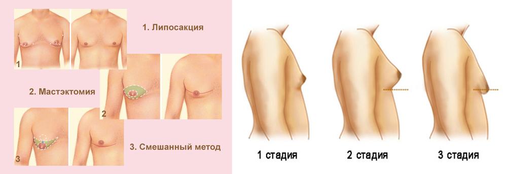 Методы лечения гинекомастии