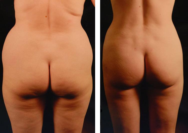 Липосакция спины и боков