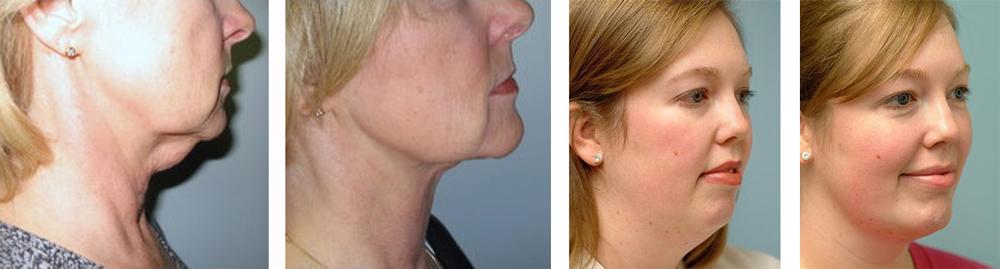Эффект от липосакции шеи