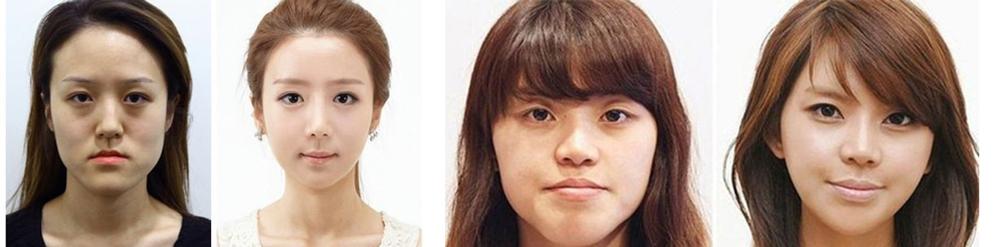 Пластика лица у азиаток