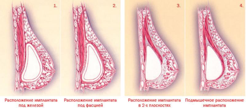 Виды установки грудных иплантов