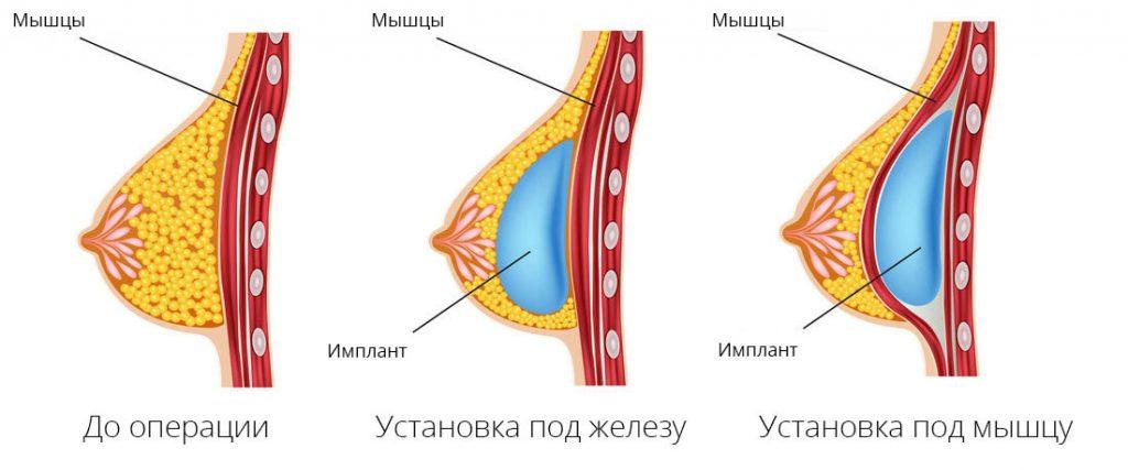 Виды установки имплантов