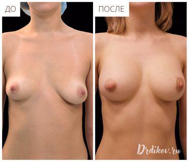Операция по удалению ассиметрии груди
