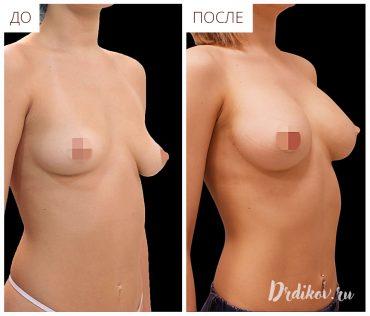 Пластика для ассиметричной груди