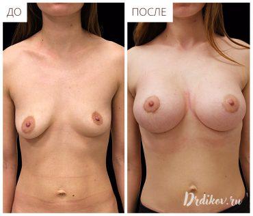 Ассиметрия груди - до и после операции