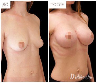 Пластика на ассиметричной груди