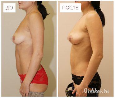 Липоскульптурирование живота. Фото до и после операции