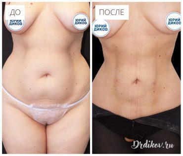 Липоскульптура талии. Фото до и после операции