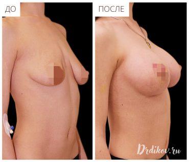 Операционная подтяжка груди
