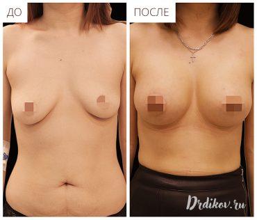 Пластика по подтяжке груди
