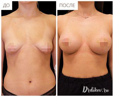 Подтяжка тубулярной груди до и после операции