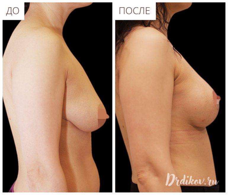 Подтяжка груди в профиль