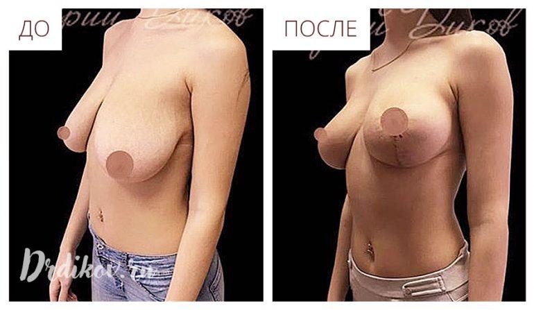 Подтяжка груди. Якорный шов
