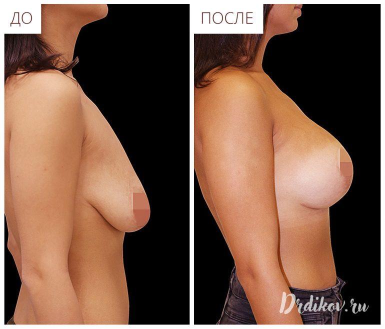 Исправление обвсшей груди