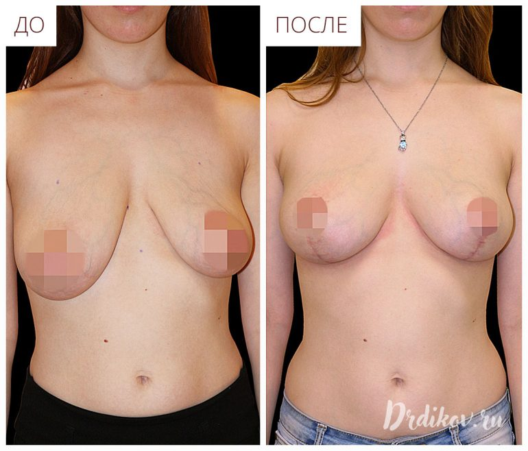 Подтяжка ассиметричной груди