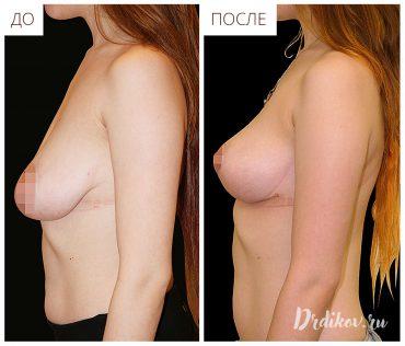 Результаты операции по подтяжке груди