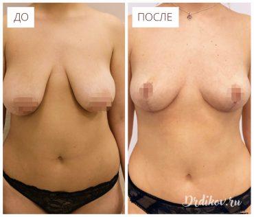 Подтяжка груди. Фото до-после операции