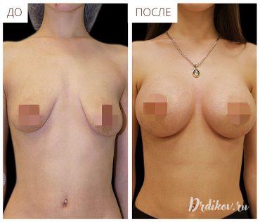 Пластическая операция по увеличению тубулярной груди