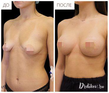 Увеличение тубулярной груди