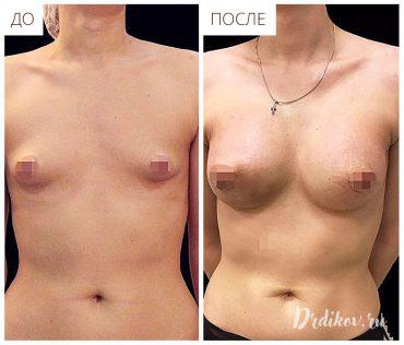 Пластика тубулярной груди - до и после