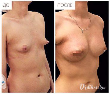 Пластика тубулярной груди круглыми имплантами