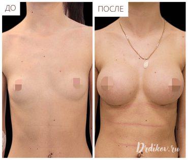 Увеличение груди До-После