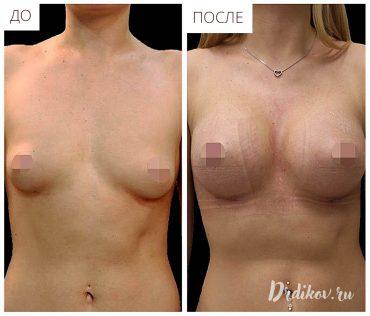 Результат операции на ассиметричной груди