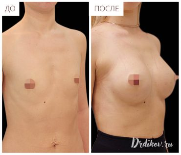 Увеличение пластической операцией маленькой груди