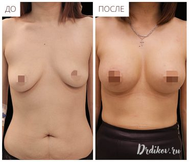 Операция по увеличению ассиметричной груди. Результаты До-После