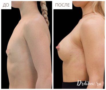 До и после увеличения груди круглыми имплантами