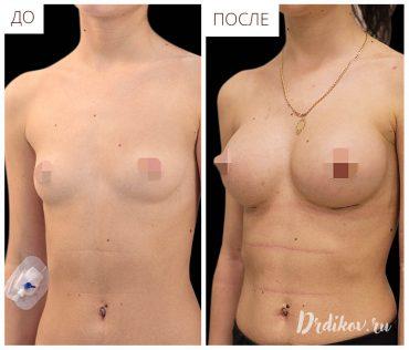 Увеличение груди. До-После операции, вид под углом.