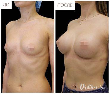 Операция по увеличению груди,