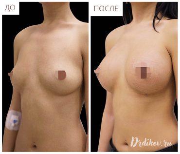 Операция по увеличению груди: До-После