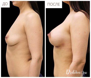Операция по увеличению груди. Фотографии до и после операции