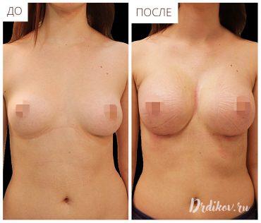 Увеличение груди и результаты операции
