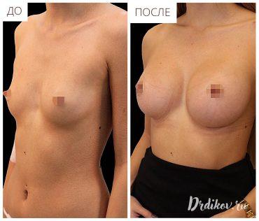 Маммопластика круглые импланты 260. Результаты пластики груди