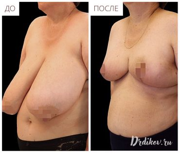 Уменьшение груди, до и после операции