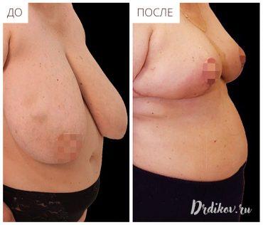 Пластика по уменьшению груди. До и После