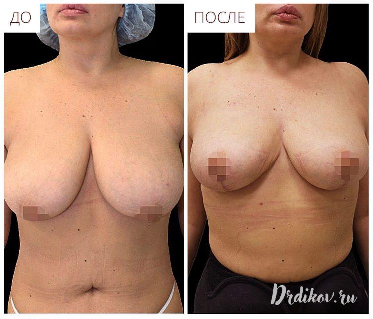 Уменьшение груди с вертикальным разрезом