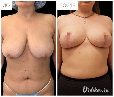 Уменьшение груди до-после