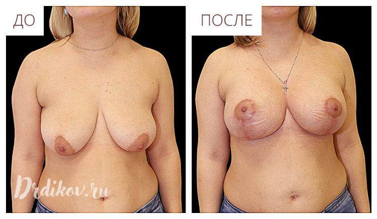 Уменьшение груди - До и После