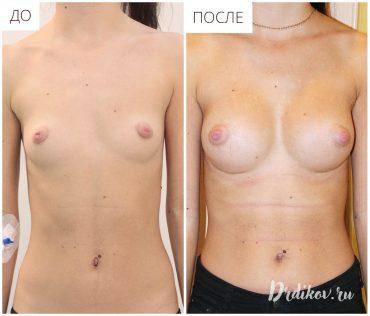 Увеличение груди 215 анатомическими имплантами