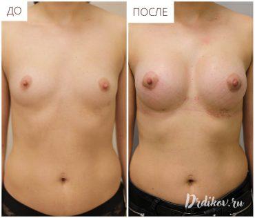 Увеличение груди анатомическими имплантами 285