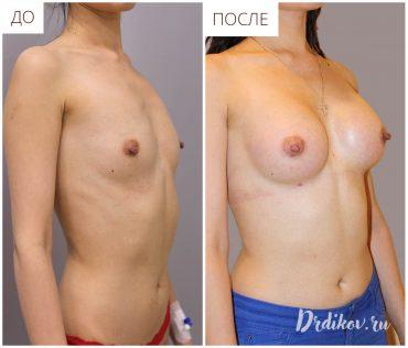 Последтсвия операции увеличения груди анатомическими имплантами 285