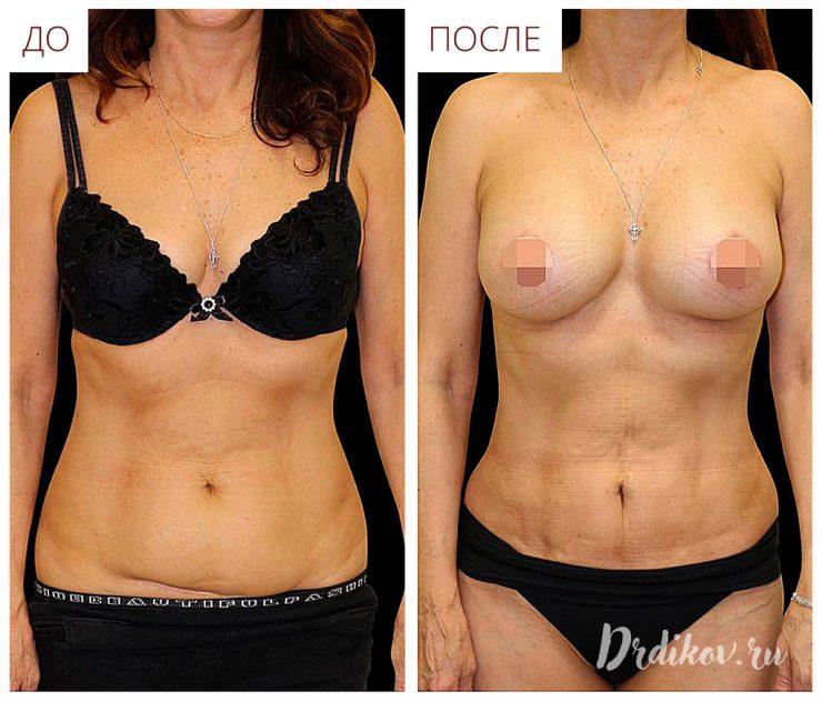 Абдоминопластика и увеличение груди