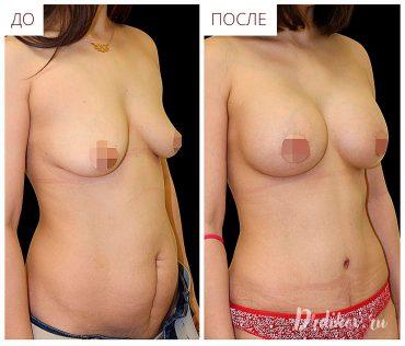 Пластика груди и живота